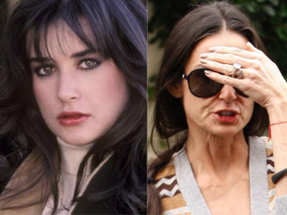 15-beautiful-stars-who-have-aged-horribly